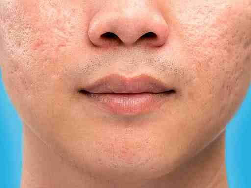 Comment resserrer les pores dilatés du visage naturellement ?