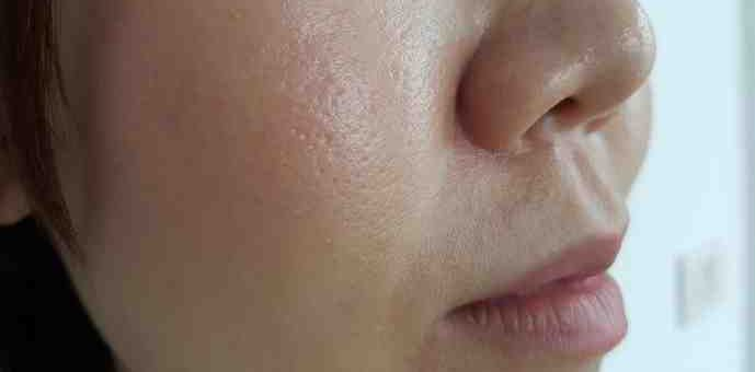 Pores dilatés visage