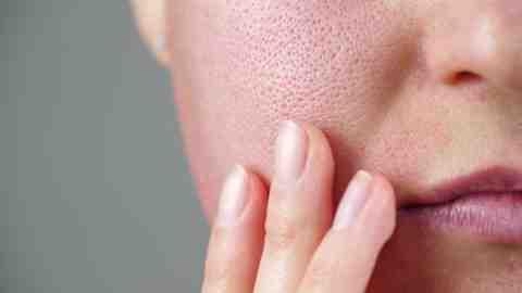 Quelle plante pour resserrer les pores du visage ?